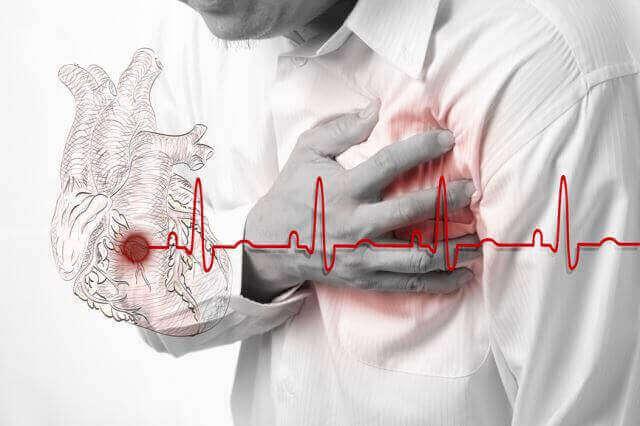 Інфаркт міокарда, причини, симптоми та лікування