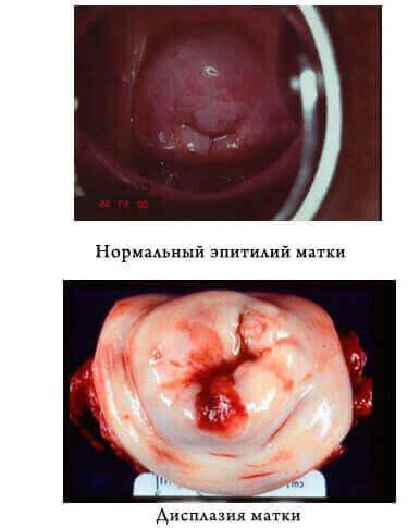 Як виглядає нормальний епітілій матки і вражений дисплазією