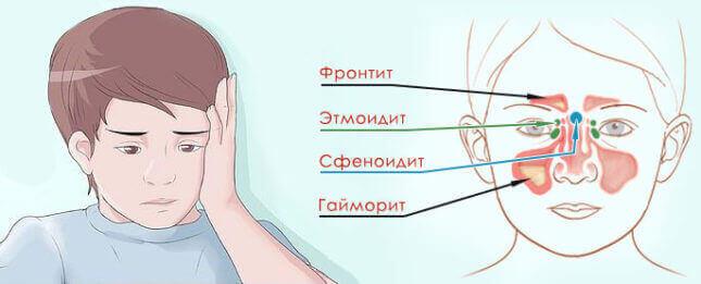 Катаральний гайморит лікування