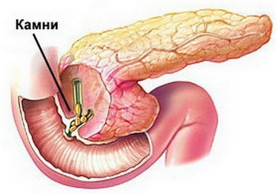 Холестатичний гепатит - причини появи, симптоми