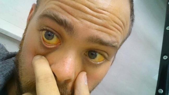 Лікарський гепатит симптоми