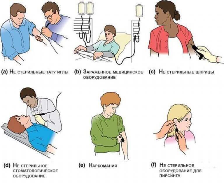 Шляхи поширення гепатиту С у чоловіків