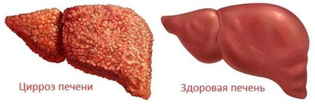 Криптогенний гепатит