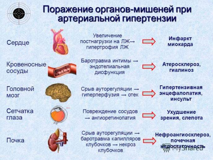 Артеріальна гіпертензія (гіпертонія): симптоми, лікування
