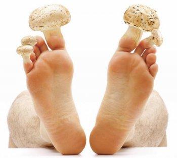 Лікування грибка нігтів на ногах