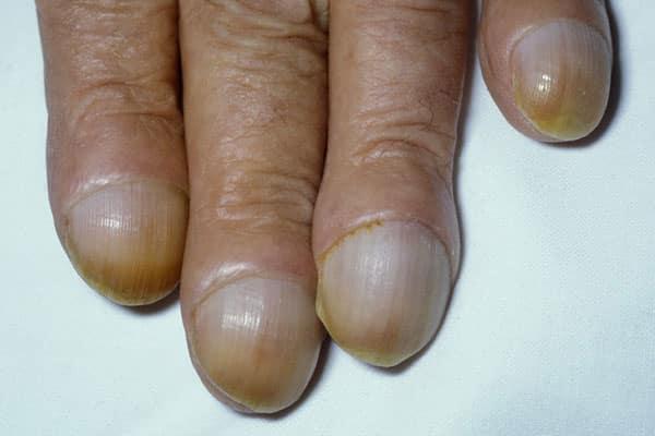 Грибок нігтів на руках - шляхи зараження