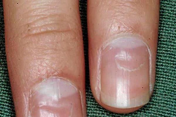 Грибок нігтів на руках