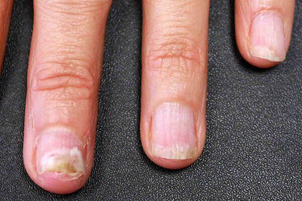 Причини, що провокують розвиток грибка на руках