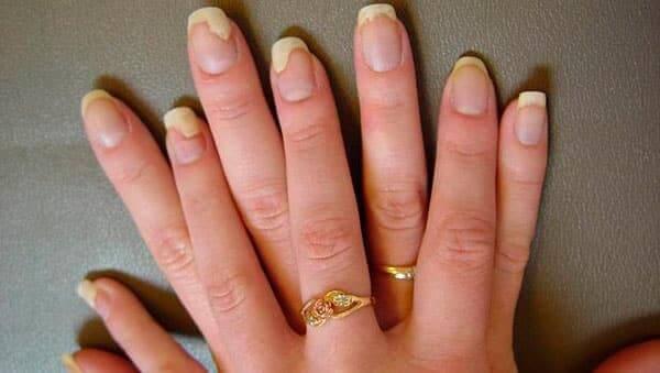 лікування грибка нігтів на руках