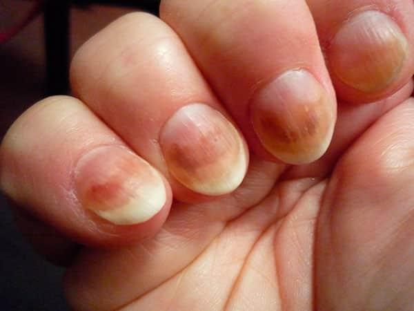 Грибок нігтів на руках: фото