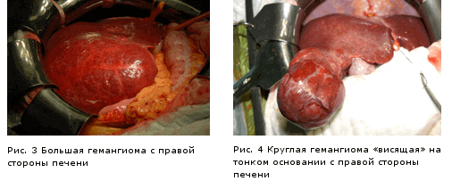 Гемангіома печінки