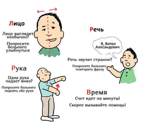 Ішемічний інсульт - симптоми