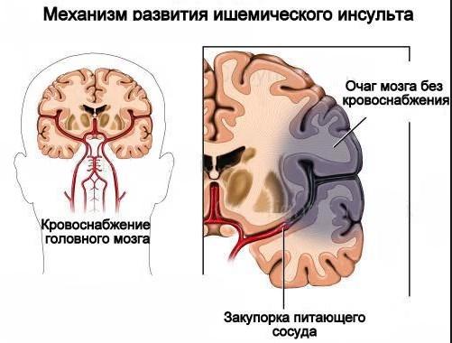 Розвиток ішемічного інсульту