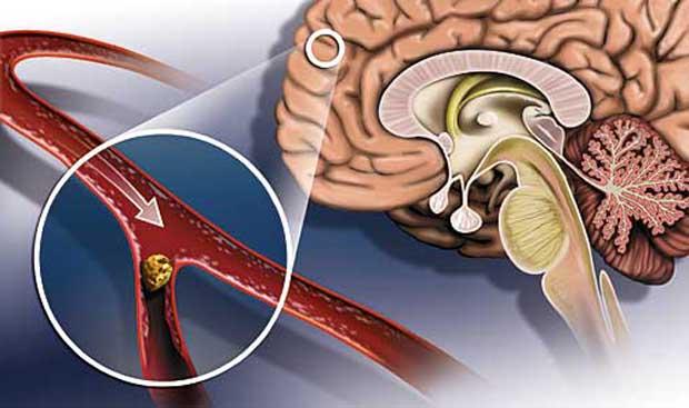 Ішемічний інсульт - що це?
