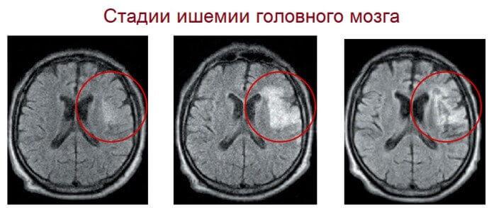Ступеня ішемії судин головного мозку