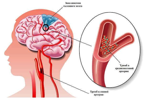 Як виникає ішемія головного мозку?