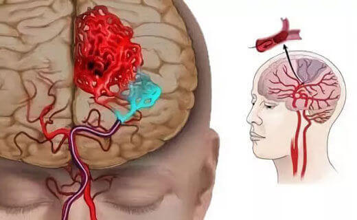 Ішемія судин головного мозку