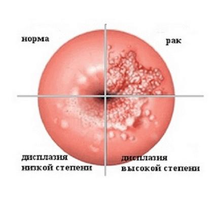 Схематичне зображення трьох ступенів дисплазії