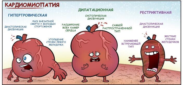 Класифікація кардіоміопатій
