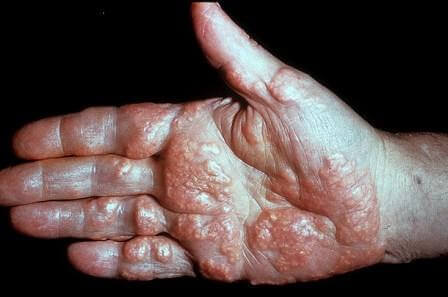 Туберозна ксантома на руках