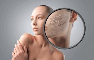 Авітаміноз на шкірі
