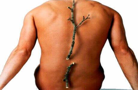 Лікуємо остеопороз в домашніх умовах