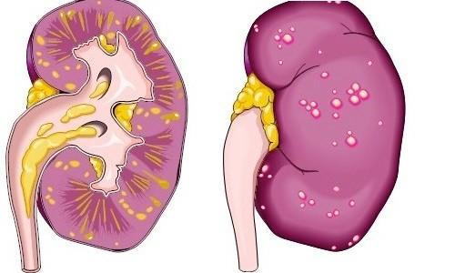 Лікування паранефрита