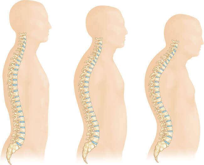 Переломи хребців при остеопорозі