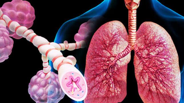 Особливості атипової пневмонії