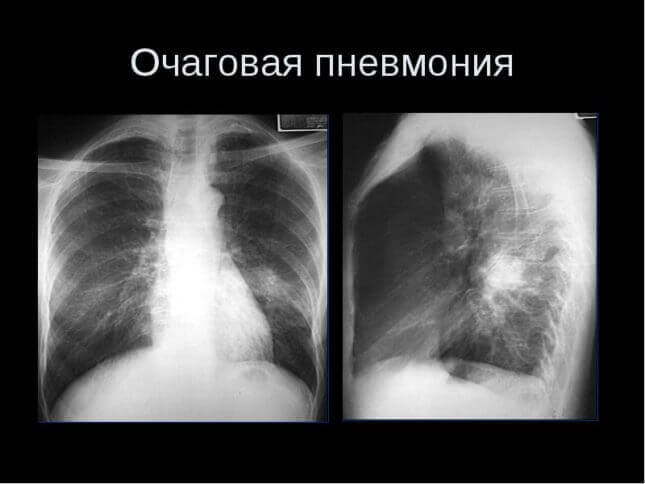 Пневмонія у немовляти