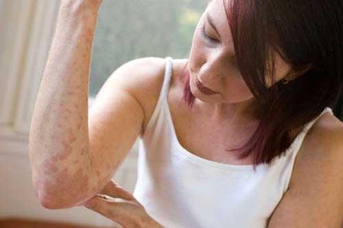 Причини виникнення псоріазу та лікування
