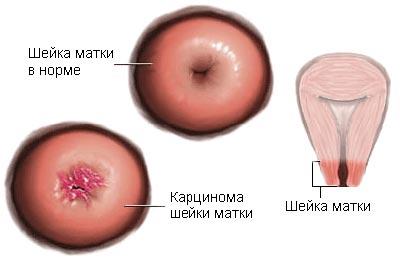 Стадії раку шийки матки