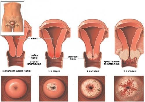 Типи раку шийки матки