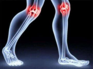 Від чого з'являється хрускіт в колінах