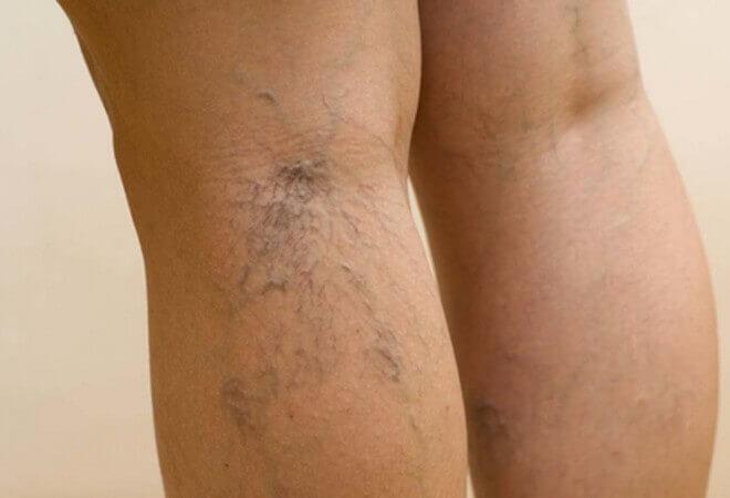 Лікування варикозної сітки і зірочок на ногах