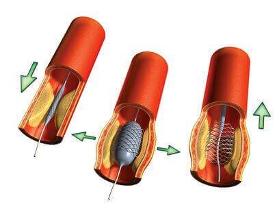 Хірургічне лікування атеросклерозу судин нижніх кінцівок