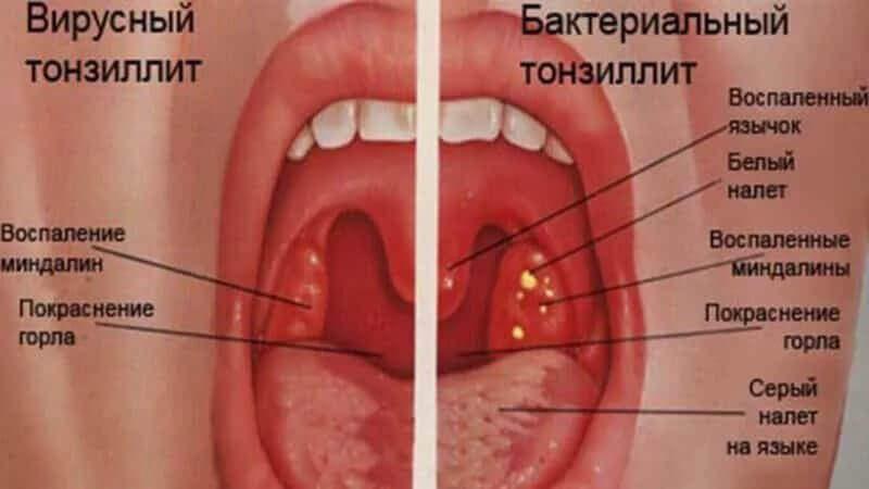 Тонзиліт: ознаки, симптоми, лікування