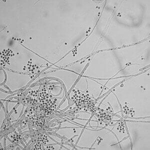 Trichophyton mentagrophytes - один із збудників оніхомікозу