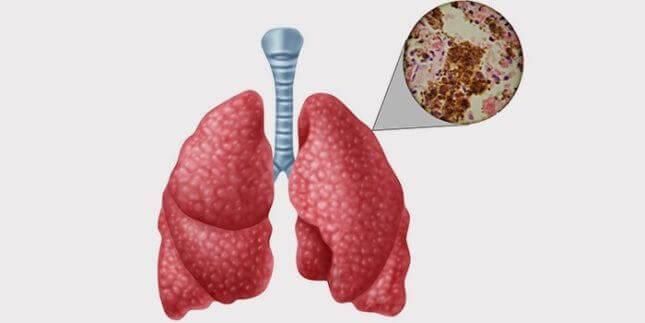 Дисемінований туберкульоз легень
