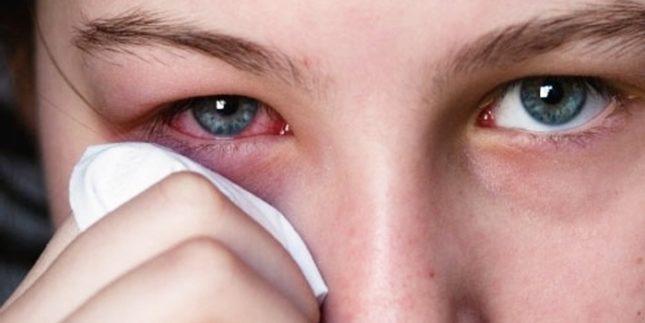Туберкульоз очей