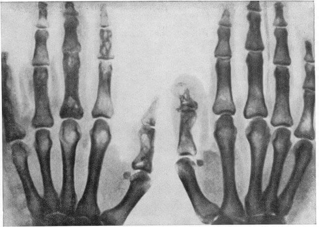 Туберкульоз кісток і суглобів