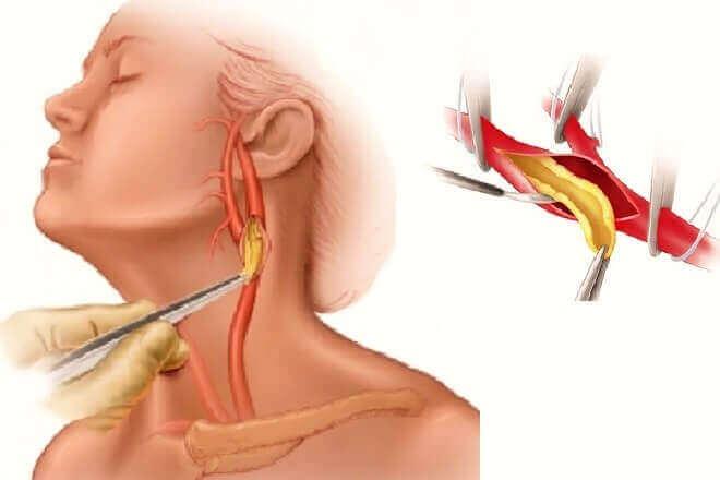 Методи діагностики та лікування тромбу в сонної артерії