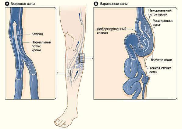 Як розпізнати варикозну хворобу