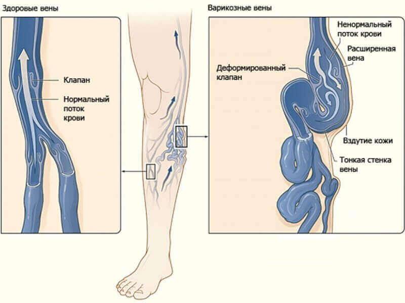 Як лікувати трофічну виразку на нозі при варикозі