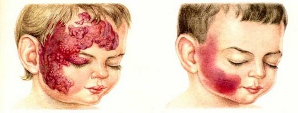 Як виглядає гемангіома у дітей