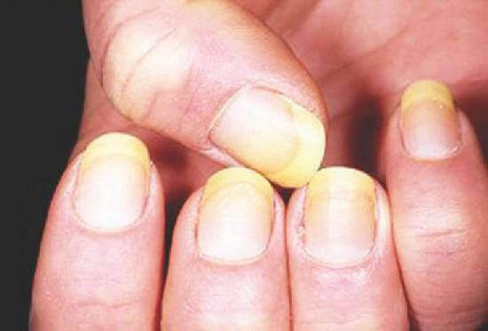 Види грибка нігтів і його збудники