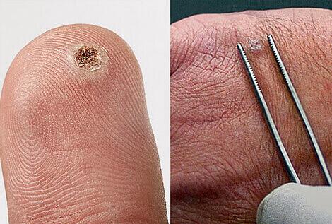 Лікування папіломавірусу народними засобами