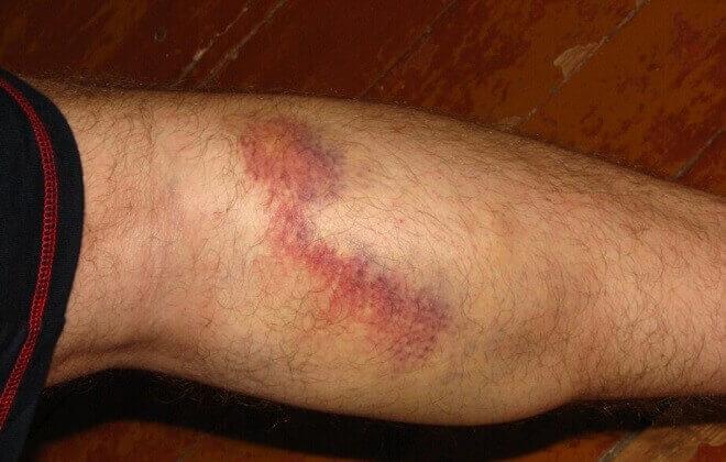 Що робити якщо лопнула судина на нозі?