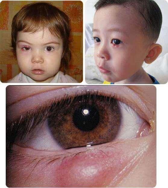 Ячмінь на оці у дитини фото