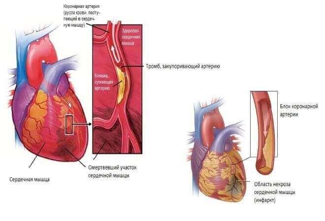 Симптоми і причини тромбу в серці